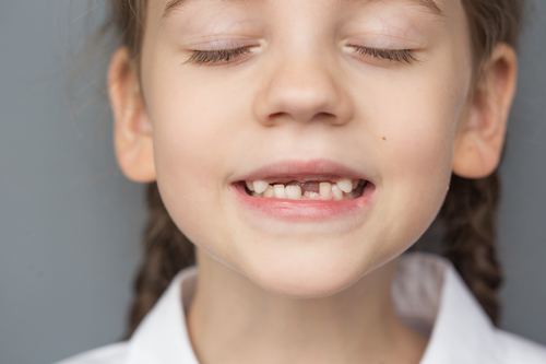 girl showing off her missing tooth