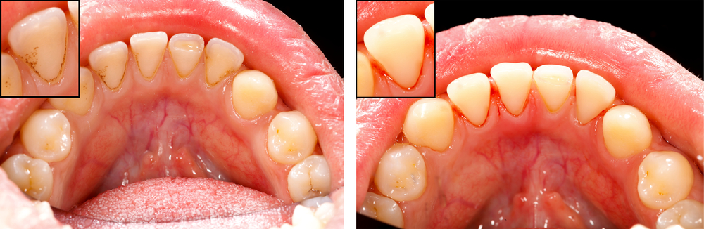 Early Warning Signs of Gum Disease