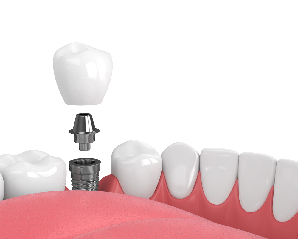 Dental Implant Recovery Timeline
